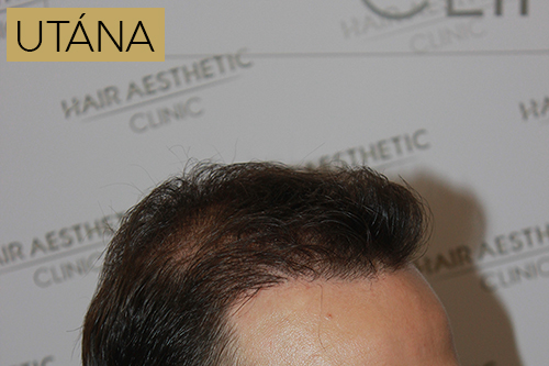 hajbeültetés után