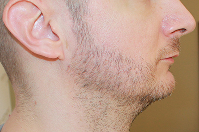 szakállbeültetés előtt