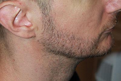 szakállbeültetés után